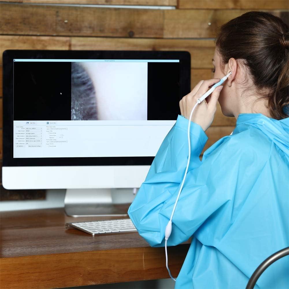 XZYP USB-Otoskop 3-In-1-Ohr-Digitalendoskopkamera 1,3 Megapixel 720P Hd-Ohrendoskop-Inspektionskamera Ohrenschmalz-Reinigungswerkzeug Mit 6 Verstellbaren Led