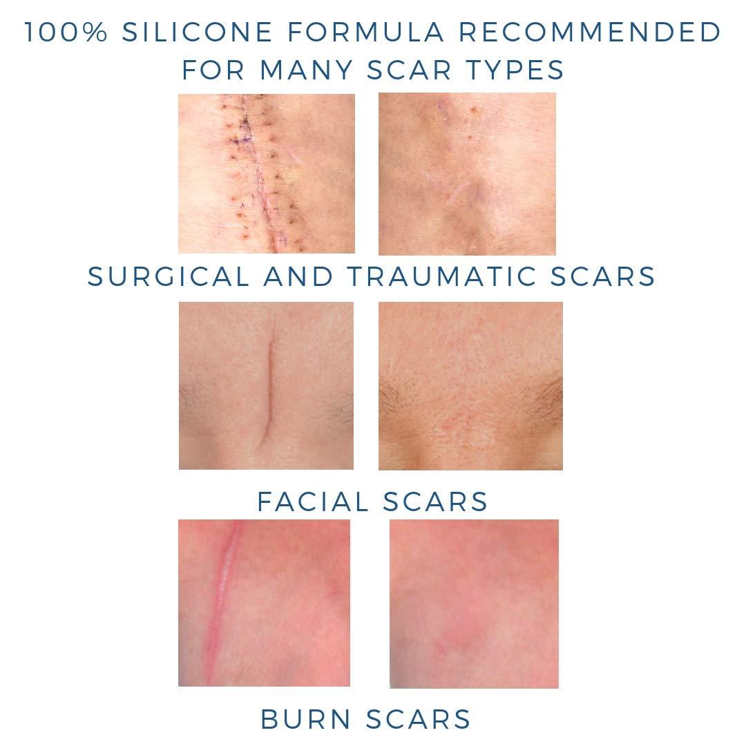 Ultimate Scar Formula l Clinically Proven l 100% Medical Grade Silicone l  Non