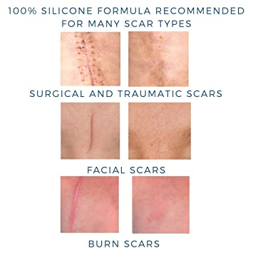 Ultimate Scar Formula - MD Performance Advanced Medical Grade Silicone l Surgical, Traumatic, Burn, Acne, C Section Scars on Body and Face, Clinically Proven