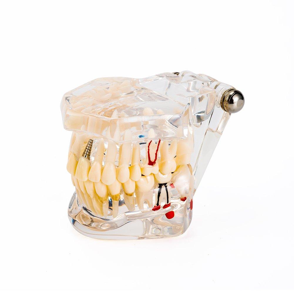Easyinsmile Dental Implant Disease Teeth Model Student Teaching Tooth Model