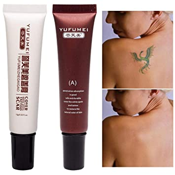 Amazon.com : Concealer To Cover Tattoo/Scar / Birthmarks/Vitiligo ...