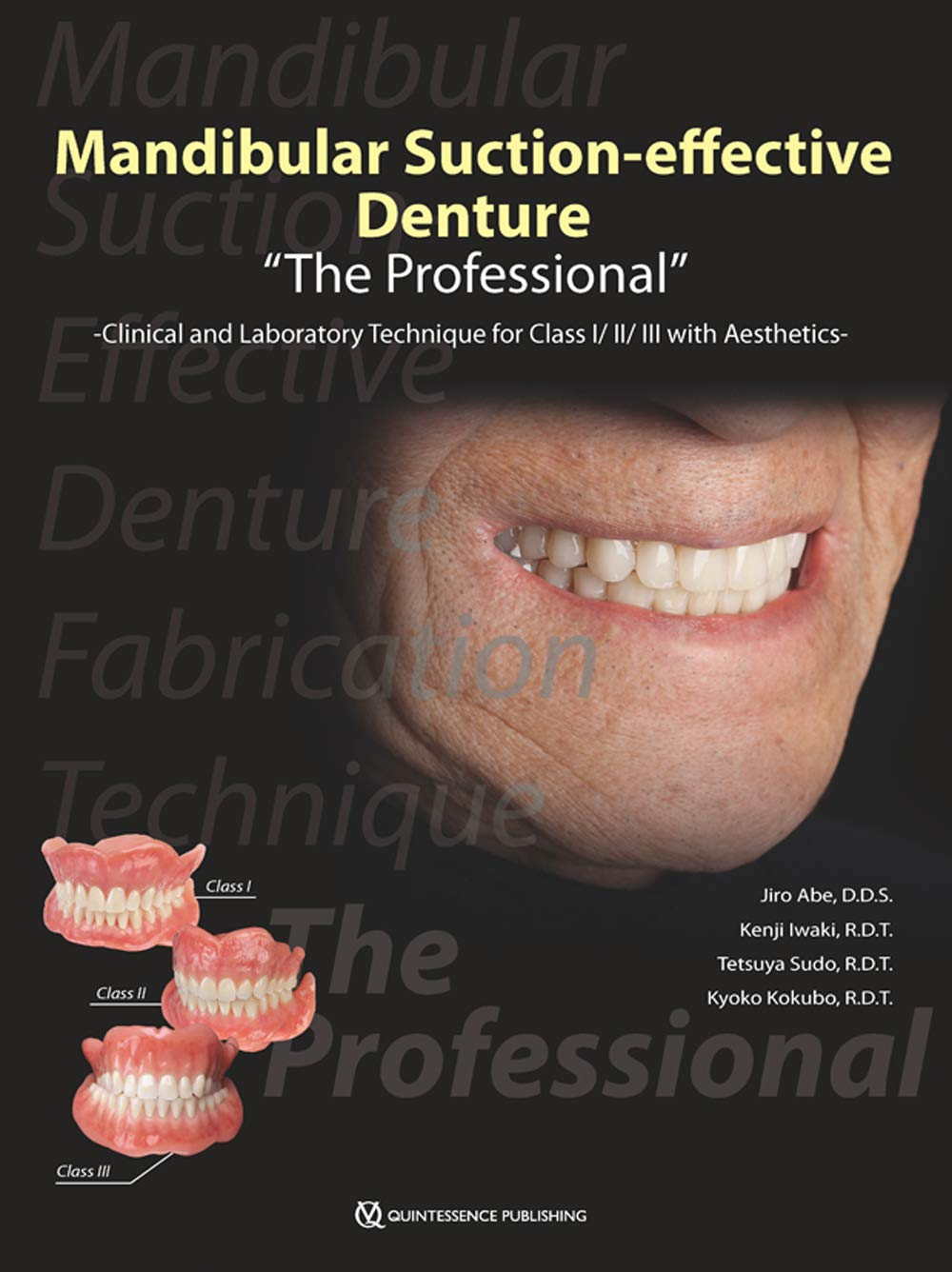 Mandibular Suction-effective Denture - Clinical and Laboratory Technique for Class I/II/III with Aesthetics