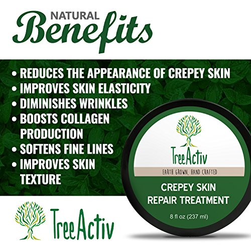 61oSm8ryVjL - TreeActiv Crepey Skin Repair Treatment, Anti-Aging, Anti-Wrinkle, Organic Ingredients for Face, Neck, Chest, Legs & Arms, Hyaluronic Acid, Alpha Hydroxy Fruit Acids, Honey, Shea, Castor