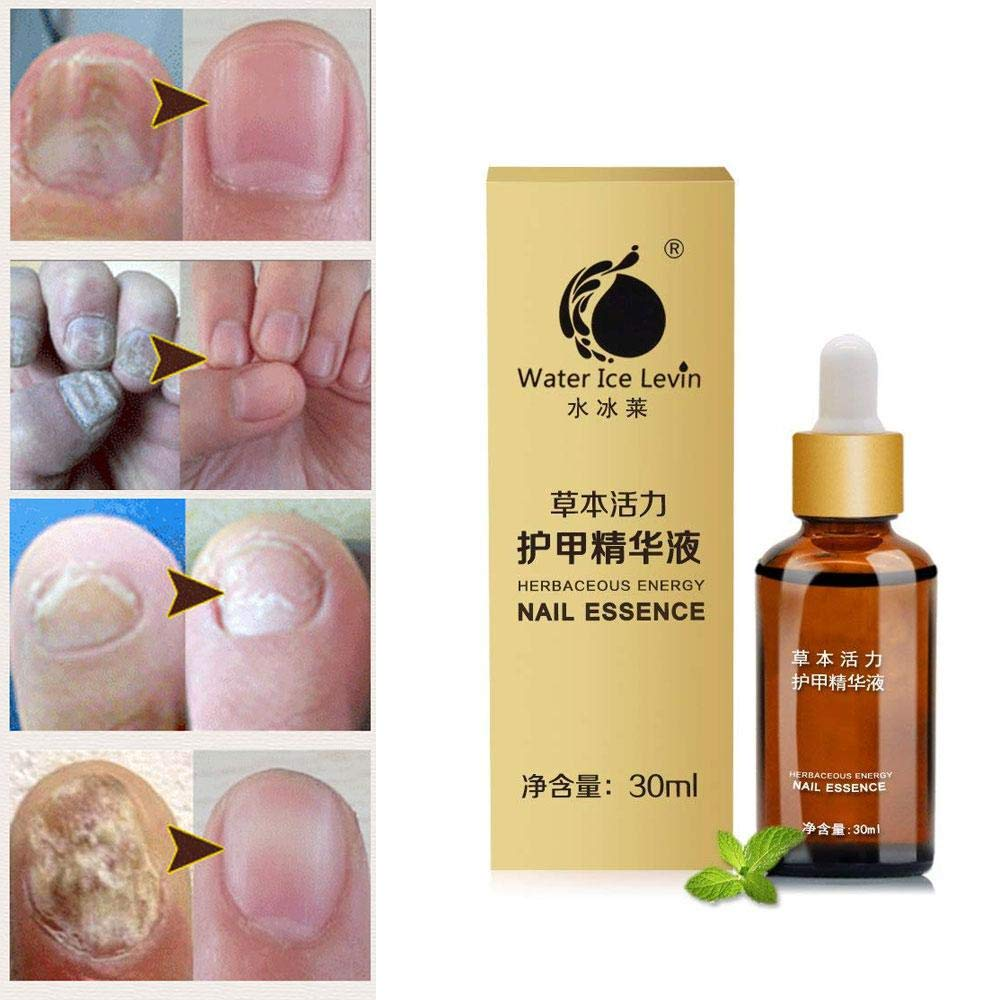 Nail Treatment Essence, leegoal Herbaceous Energy Fungal Nails Repair Foot Whitening Toe Nail Fungus Removal Anti Infection Finger Nail Care Gel (30ml)