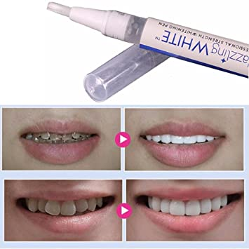 Ltrottedj White Tooth Cleaning Bleaching Dental Professional Kit Teeth Whitening Gel Pen