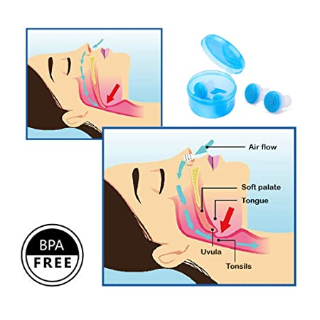 ... Respirador Purificador del Aire Dilatador Nasal Antirronquidos- Incluye Estuche de Viaje (Versión Mejorada): Amazon.es: Salud y cuidado personal