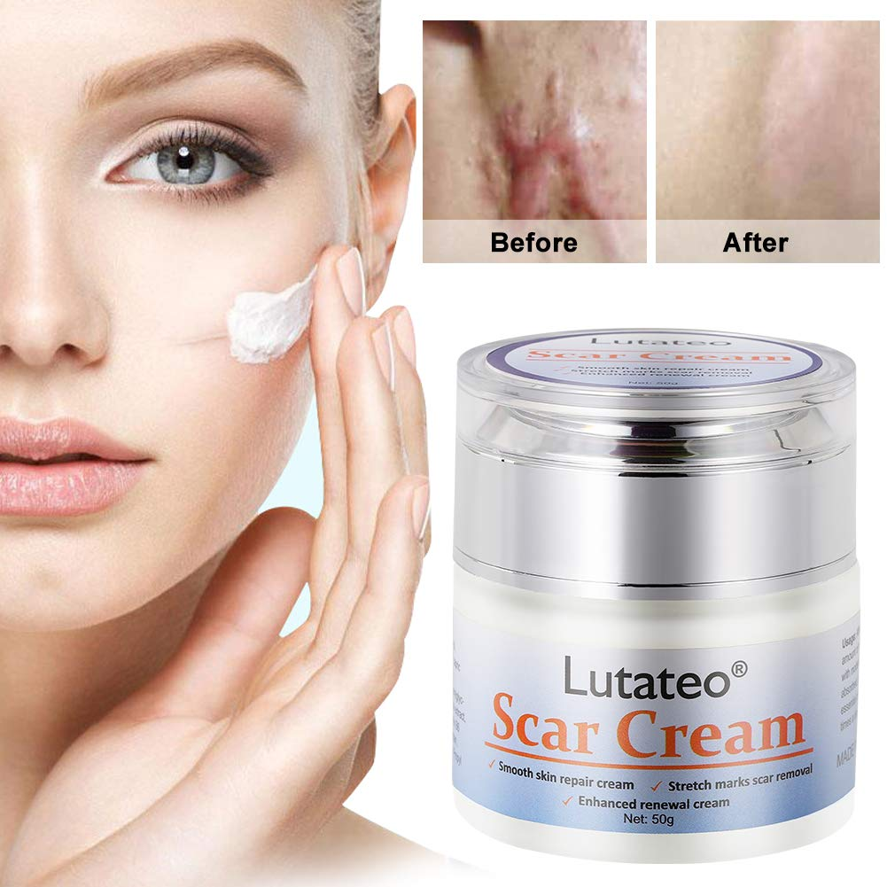 Amazon Com Scar Cream Stretch Mark Cream Acne Scar Removal Cream Acne Spots Treatment Burns Repair Face Skin Repair Cream 50g Beauty