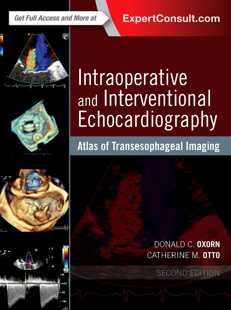 Intraoperative And Interventional Echocardiography  Atlas Of Transesophageal Imaging