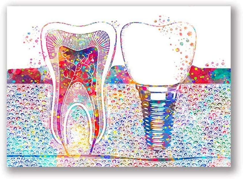 YGYT Canvas Wall Art for Dental Tooth Watercolor Poster on Canvas for Dentist Clinic Unframed 24x32 inches