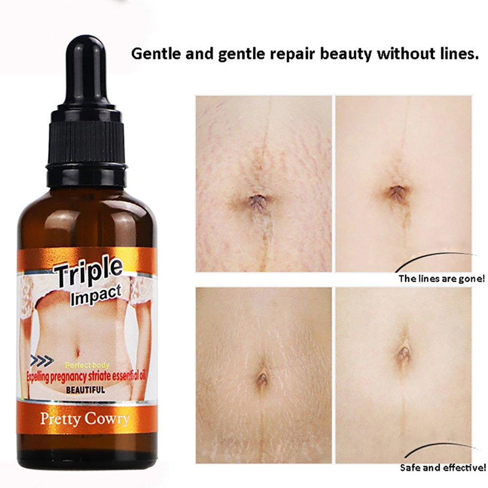 Stretch Mark Scar Removal Essential Oils Postpartum Stretch Marks Skin Repair Improving Flabby Dark Skin 50ml RedDhong