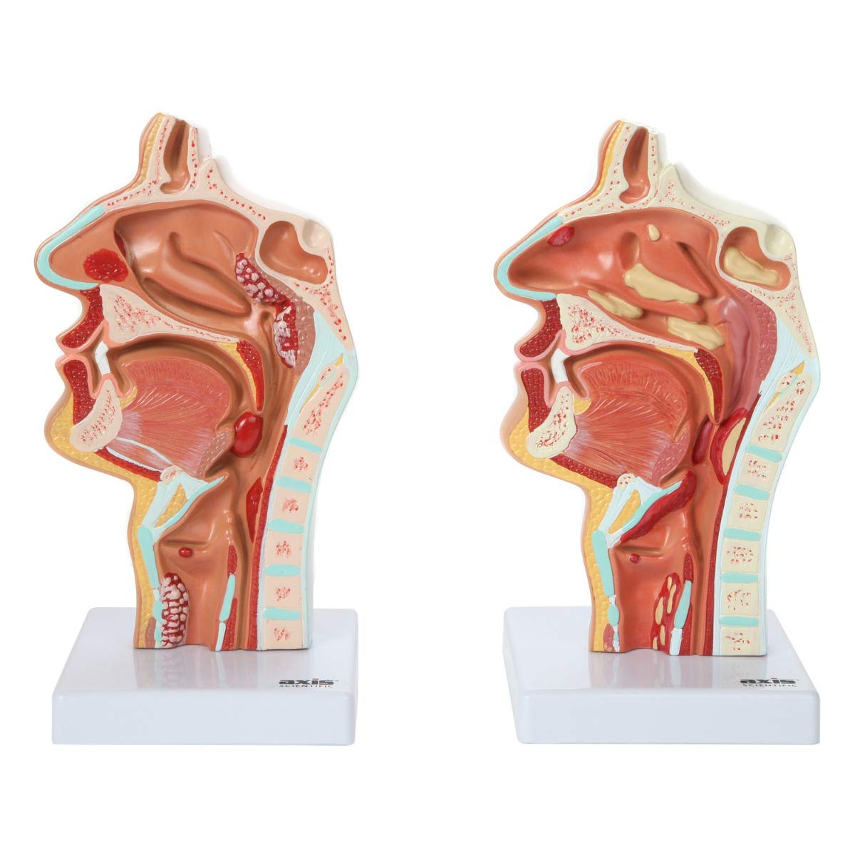 Axis Scientific Human Larynx And Pharynx Disorders Model Shows