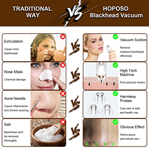 HOPOSO Blackhead Remover Pros and Cons