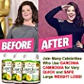 3 Garcinia Cambogia 1000 mg 100% Pure - 180 Capsules - All Natural Weight Loss Supplement, Max Strength Plus Appetite Suppressant Diet Pills, Premium Lean Health Extract to Boost Energy & Metabolism