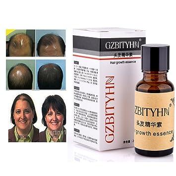 Aceite Crecimiento Cabello Esencia para Crecimiento del Pelo contra la Alopecia Tratamiento de la Pérdida de Cabello para Hombres Mujeres (2 Botellas): ...