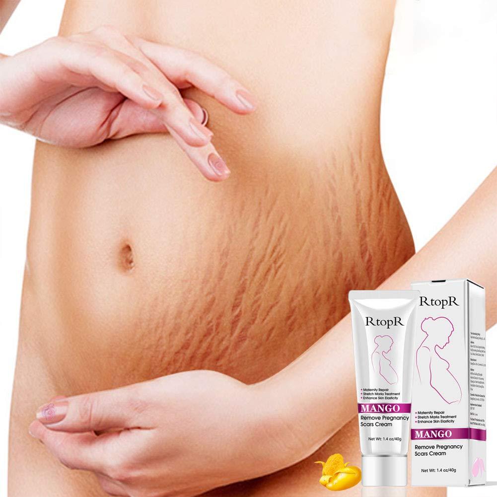 EDTara Scars Acne Remover Cream Mango Remove Pregnancy Scars Acne Cream Stretch Marks Treatment Maternity Repair Anti-Aging Anti Winkles Firming Body Creams