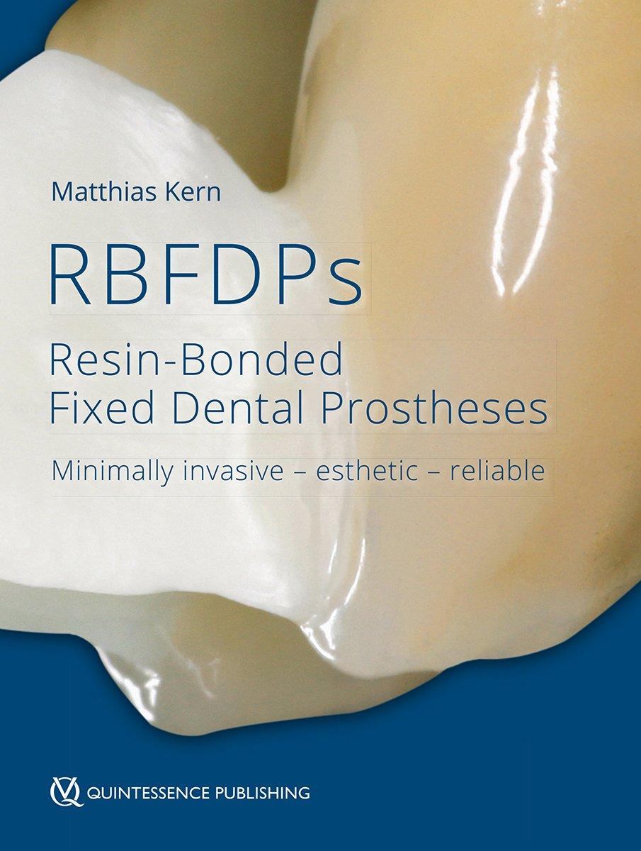 RBFDPs: Resin-Bonded Fixed Dental Prostheses