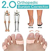 Orthopedic Bunion Corrector 2.0 Toe Separators Elastic Straighteners Spacers,1 Pair