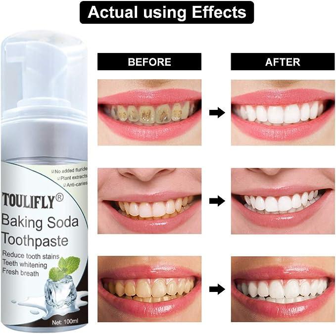 Amazon Com Baking Soda Toothpaste Foam Toothpaste Intense Stain