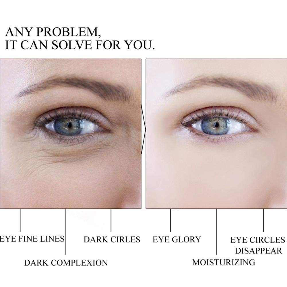 Dark Circles Under Eyes Causes Liver