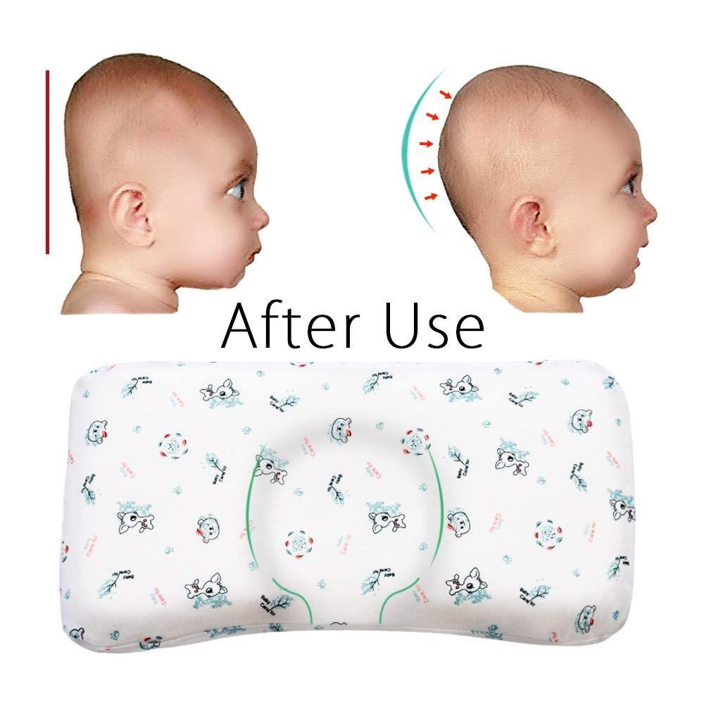 Baby Pillow for Sleeping,Infant Head Shaping Pillow Prevent Flat Head Syndrome,Easylife185 Memory Foam Newborn Round Pillow for 0-2T Baby Girl and Boy with Washable Cotton Pillow Cover (Giraffe)