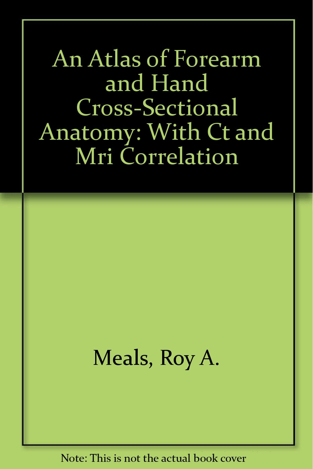 An Atlas of Forearm and Hand Cross-Sectional Anatomy: With Ct and ...