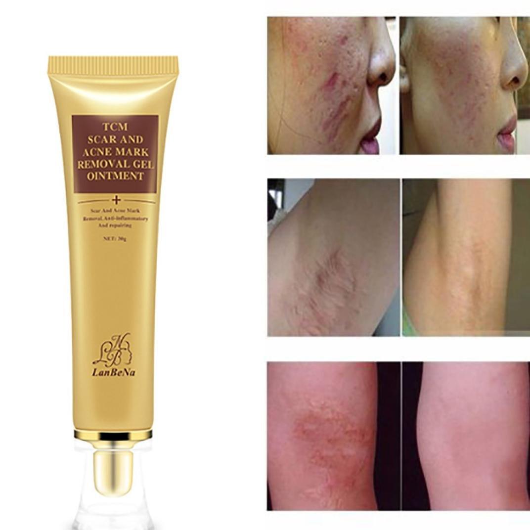 acne spot removal cream