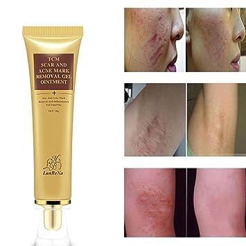 Amazoncom Removing Scar Ointment Lotusflower Herbal Acne Scar
