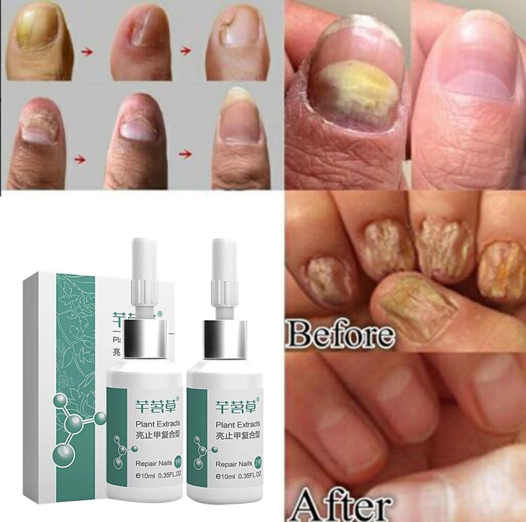 UMFun 2Pcs Fungus Removal Infection Anti Fungal Herbal Foot Fungi Repair Nail Treatm 10ml