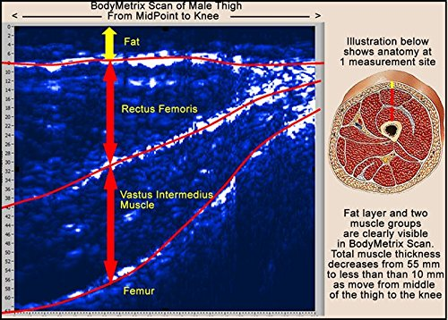 BodyMetrix Professional Ultrasound Body Composition by BodyMetrix (Image #5)