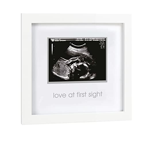 Love at First Sight Sonogram Keepsake Frame