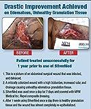 SilverMed Antimicrobial Hydrogel (3 oz.)