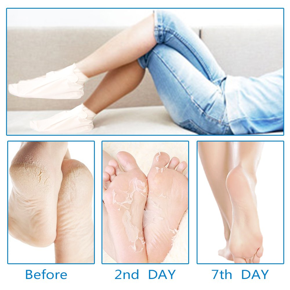Foot Peel Mask(2 pair) with a Gift(1 pair of Moisturizing Foot Mask), Exfoliating Dead Skin Remover by BRITOR by BRITOR (Image #4)