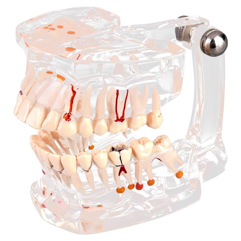 Transparent Dental Implant Disease Teaching Study Standrard Teeth Model Demonstration Pathological Educational Tooth Teaching Tools