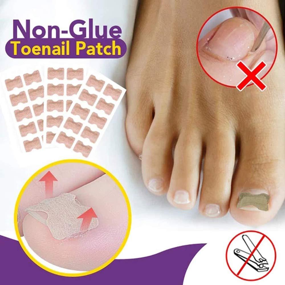 3 Set Glue Free Toenail Patch - Ingrown Toenail Correction Sticker Professional Pedicure for Men Women Toenail Care Tool: Beauty