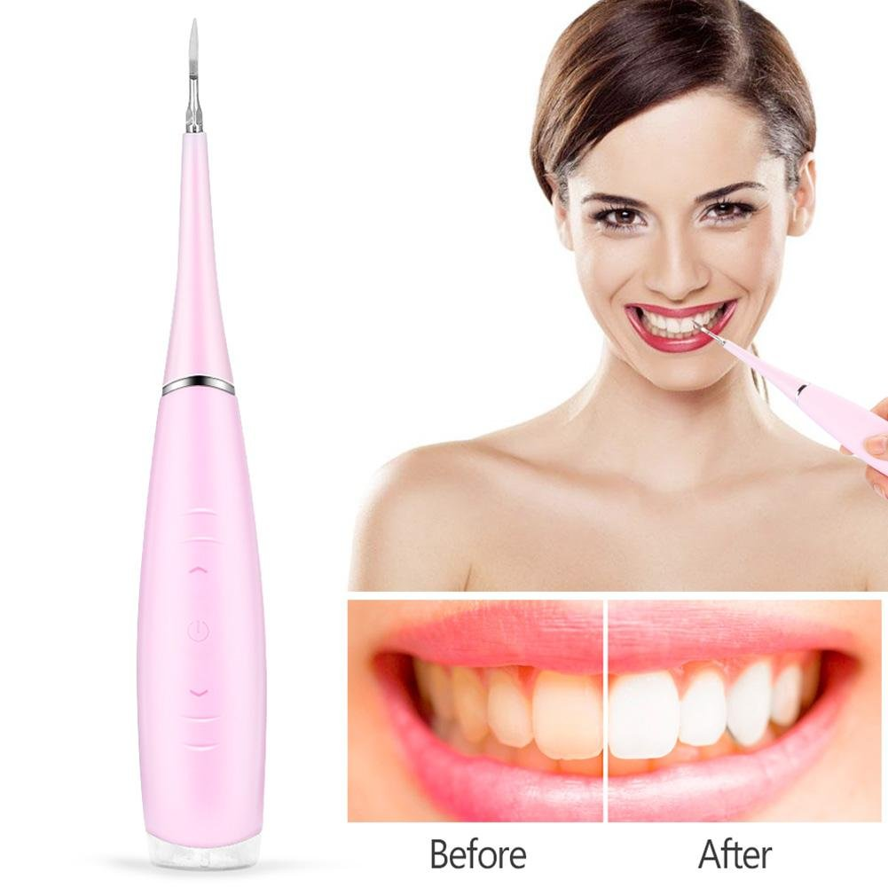 Calculus Removal Tool, Portable Electric Oral Irrigator Teeth Cleaning Dental Irrigation Calculus Removal Tartar Clean(Pink) by ZJchao (Image #2)