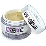 Natural Acne Treatment Cream - Best Non Greasy Organic Spot Remedy for Cystic and Hormonal Acne, Suitable for Adult and Teenage use, Day and Night and EU Certified - Start Clearing Your Acne Today!