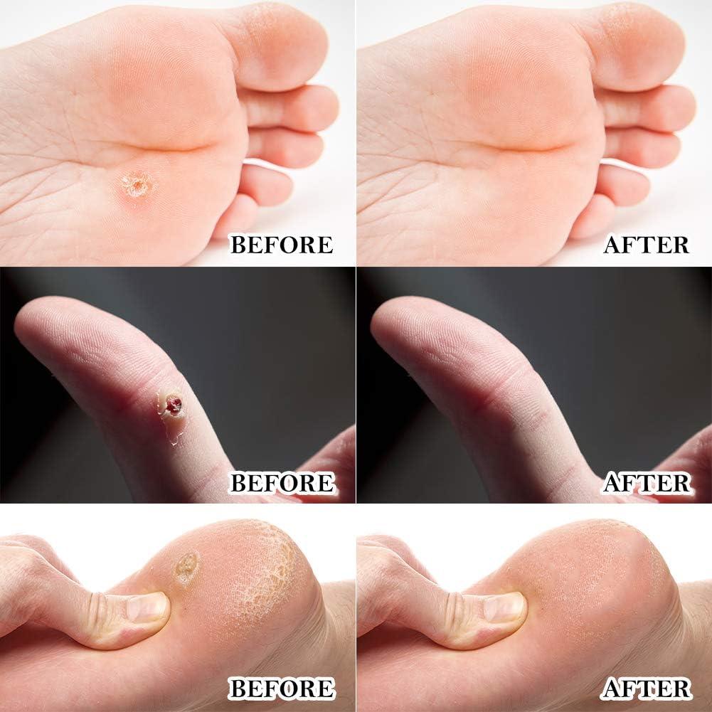 Amazon Com Wart Remover Corn Remover Foot Corn Remover Pads Plantar Wart Removal Corn Callus Remover Penetrates And Removes Common And Plantar Warts Callus Stops Wart Regrowth Health Personal Care