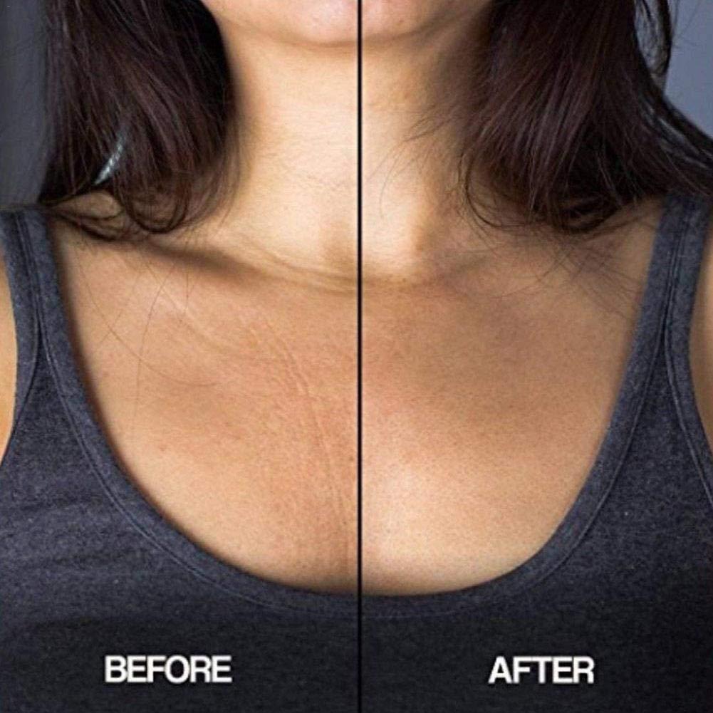Ablerfly - Almohadilla antiarrugas de silicona para el pecho tipo T para eliminar y prevenir las arrugas del pecho: Amazon.es: Belleza