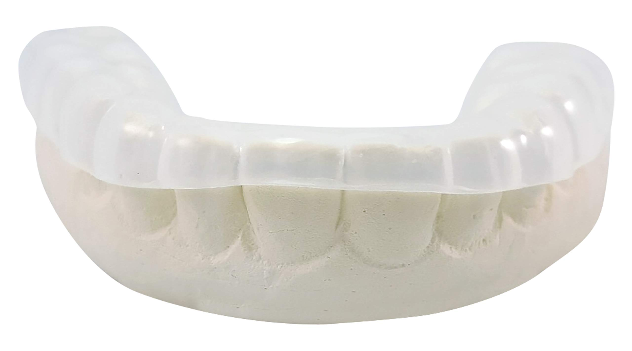 Front Cut Premium Custom Dental Teeth Grinding Guard - For Upper Teeth - Dental Lab Direct - Protect Teeth From Teeth Grinding and Clenching by Sparkling White Smiles