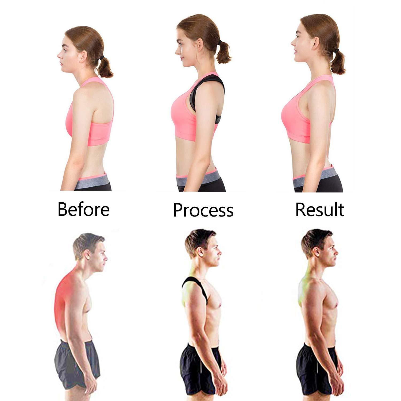 Posture Corrector for Men Women, BackNeck Brace Belts Under Clothes, Adjustable Back Shoulder Support for Back Pain Relief (L)