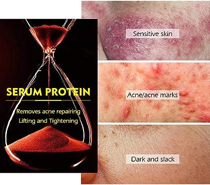 Symeas VG - Mascarillas de proteína de suero para aliviar el ...