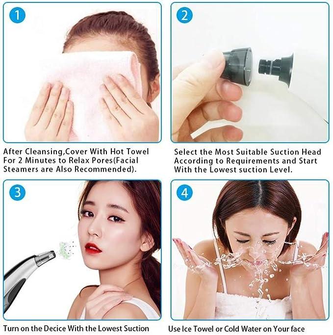 Evin Aspirador de poros, 5 Fuerza Ajustable Belleza Exfoliante máquina Limpieza de poros acné Limpieza Facial de poros: Amazon.es: Hogar