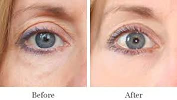 AMAZING FOR PUFFY EYES, DARK CIRCLE TREATMENT DERMISA ENHANCE APPEARANCE OJERAS