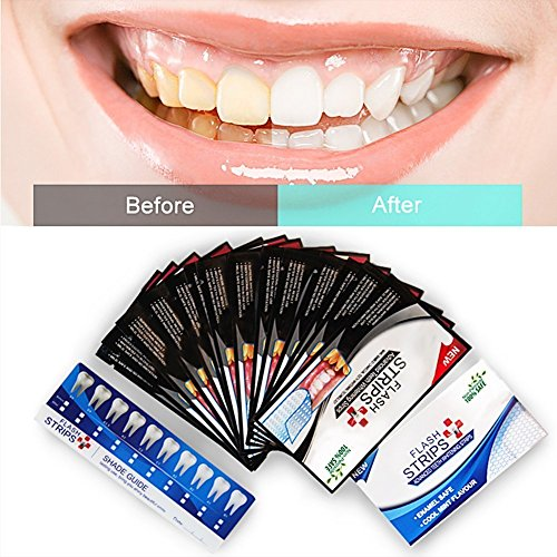 Advanced Formula Case - Activated Charcoal Teeth Whitening Strips,Teeth Whitening Kit,Black Teeth Strips,Teeth Bleaching, Advanced Formula with Natural Activated Charcoal 20 Strips with a Fresh Mint Flavor …