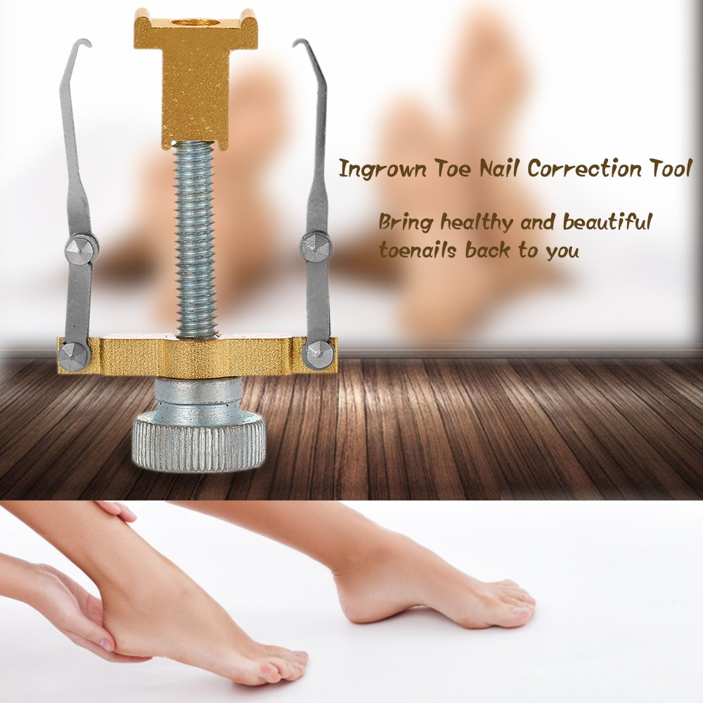 Anself Ingrown Toe Nail Correction Tool Toenail Treatment Pedicure ...
