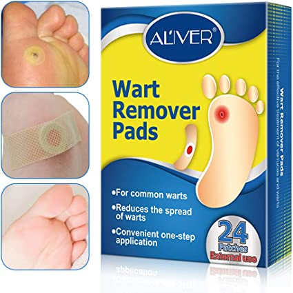 Wart on your foot, Wart under foot removal