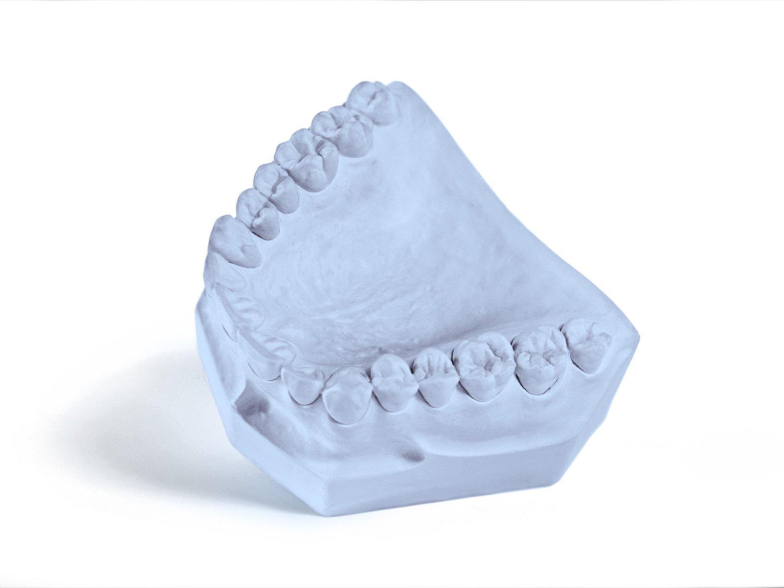 Garreco 1011525 Dental Tecstone, Type III Gypsum Base Stone, 25 lb Carton, Blue