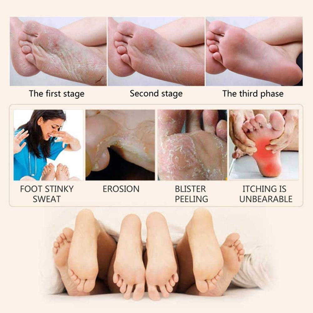 30g Foot Care Cream Exfoliating Anti Bacteria Feet Itch Blister Peeling Feet Ointment At All Costs Foot Care Tool Beauty & Health