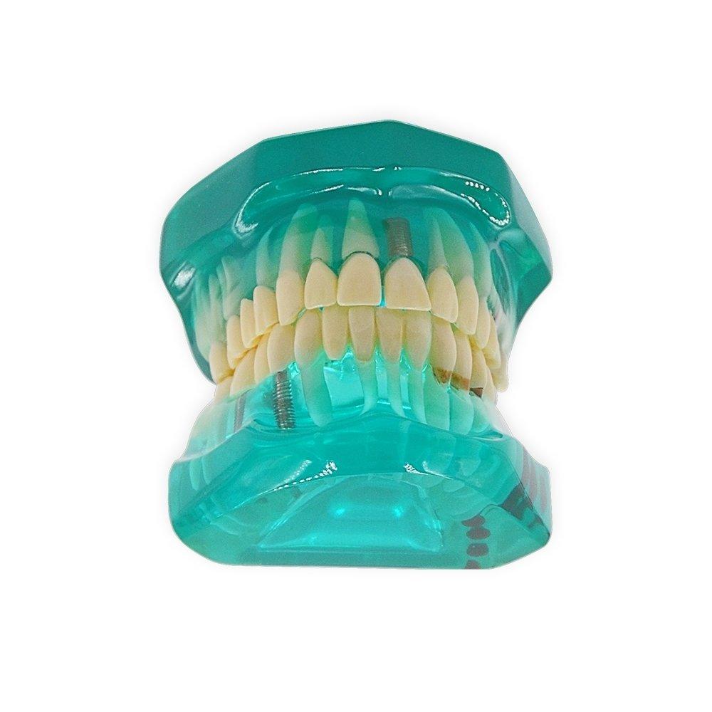 Dental Standard Teeth Teaching Model Kids Denture Model Tooth Model for Student Green Color
