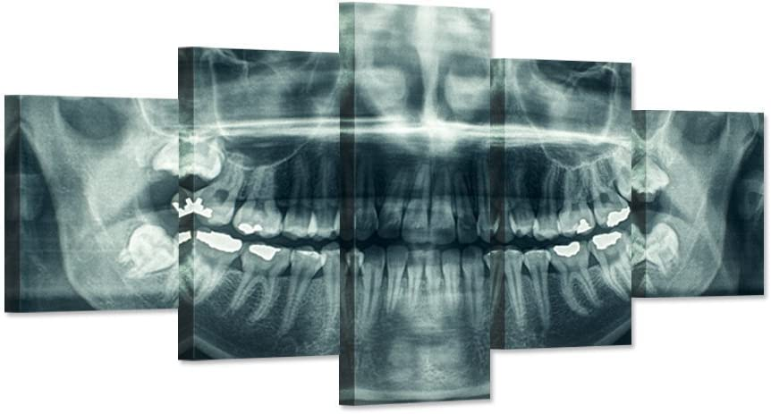 iHAPPYWALL Modern Home Canvas Art X-Ray Dental Tooth Oral Panoramic Peel and Stick Wall Decals The Picture Teeth Decay Print On Canvas For Dental Clinic Wall Decoration